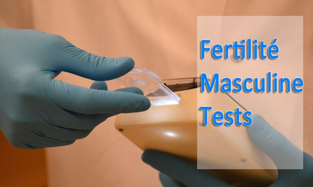 Fertilité Masculine Tests - Meilleur guide pour connaître la fertilité masculine
