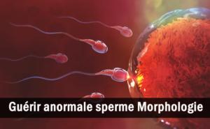 Tout ce que vous devez savoir sur la morphologie anormale du sperme Et son traitement