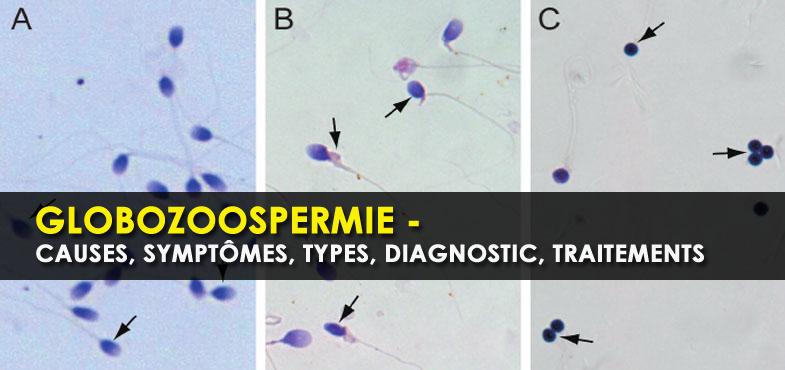 Globozoospermie - causes, symptômes, types, diagnostic, traitements